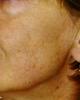 estetica-myr-rejuvenecimiento1a